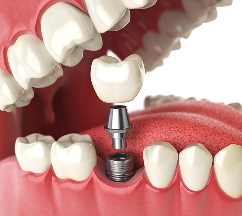 all on 4 dental implants in sidney
