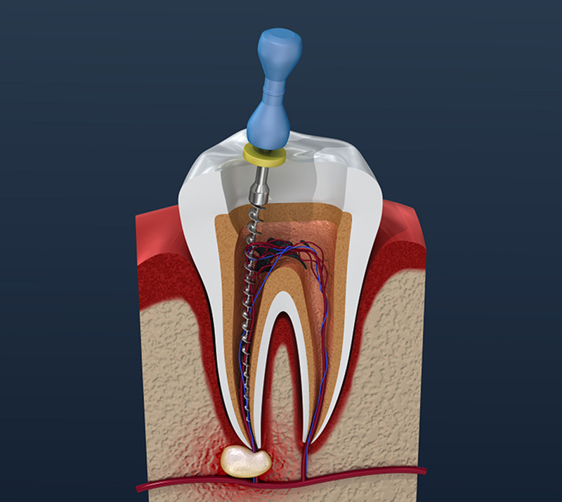 root canal therapy near you